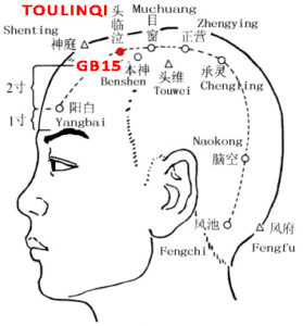 Toulinqi lies directly above the pupils when the eyes are looking straight ahead, 0.5cun within the anterior hairline, at the midpoint of the line connecting Shenting(GV24) and Touwei(ST8)