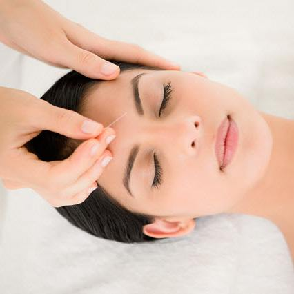 What are the benefits of Acupuncture ?