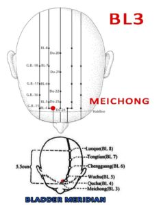 Meichong BL3 is directly above Zanzhu, 0.5 within the anterior hairline, between Shenting (GV24) and Quchai (BL4).