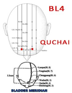 Quchai BL4 lies 0.5 cun direclty above the midpoint of the anterior hairline and 1.5  cun lateral to the midline, at the junction of the medial third and lateral two-thirds of the distance from Shenting (GV24) to Touwei (ST8).