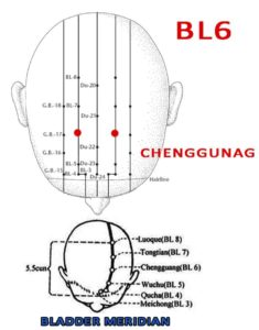 Chengguang is at the vertex of the head, 2.5 cun directly above the midpoint of the anterior hairline and 1.5 cun lateral to the midline.