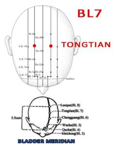 The upper part of the head is likened as the heaven. Tongtian is at the head and connects upwards with vertex.