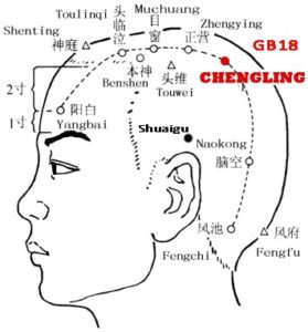 "The brain dominates the mind.The parietal bone is also called the "" Tianling"" bone. Chengling is just lateral and inferior to it."