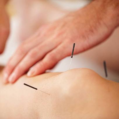 Disease Treated By Acupuncture
