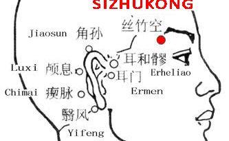Sizhukong-TE23